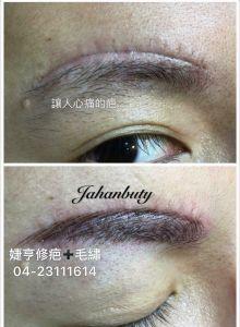 疤痕重建-改眉世家-專改壞眉